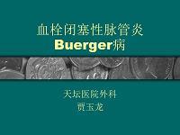 课件-血栓闭塞性脉管炎buerger病